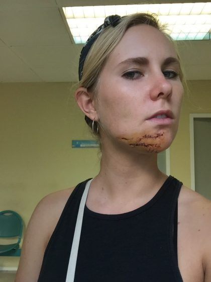 Zoe with eleven stitches in her chin